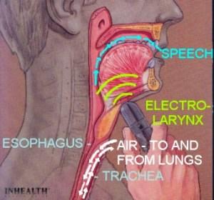electrolarynx